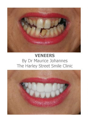 Can Porcelain Veneers Correct Overlapping Crowded Teeth