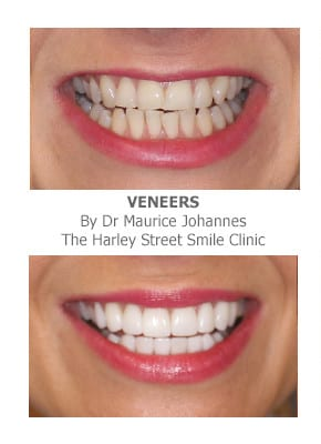 Can I Get Porcelain Veneers if I Have Crooked Teeth