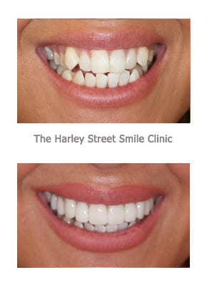 Veneers for Protruding Canines