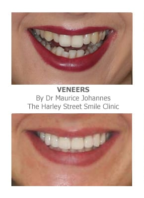 Veneers Protruding Teeth Before and After Photos