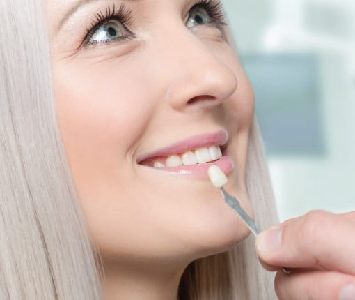 Using shade guide to check veneer of tooth crown