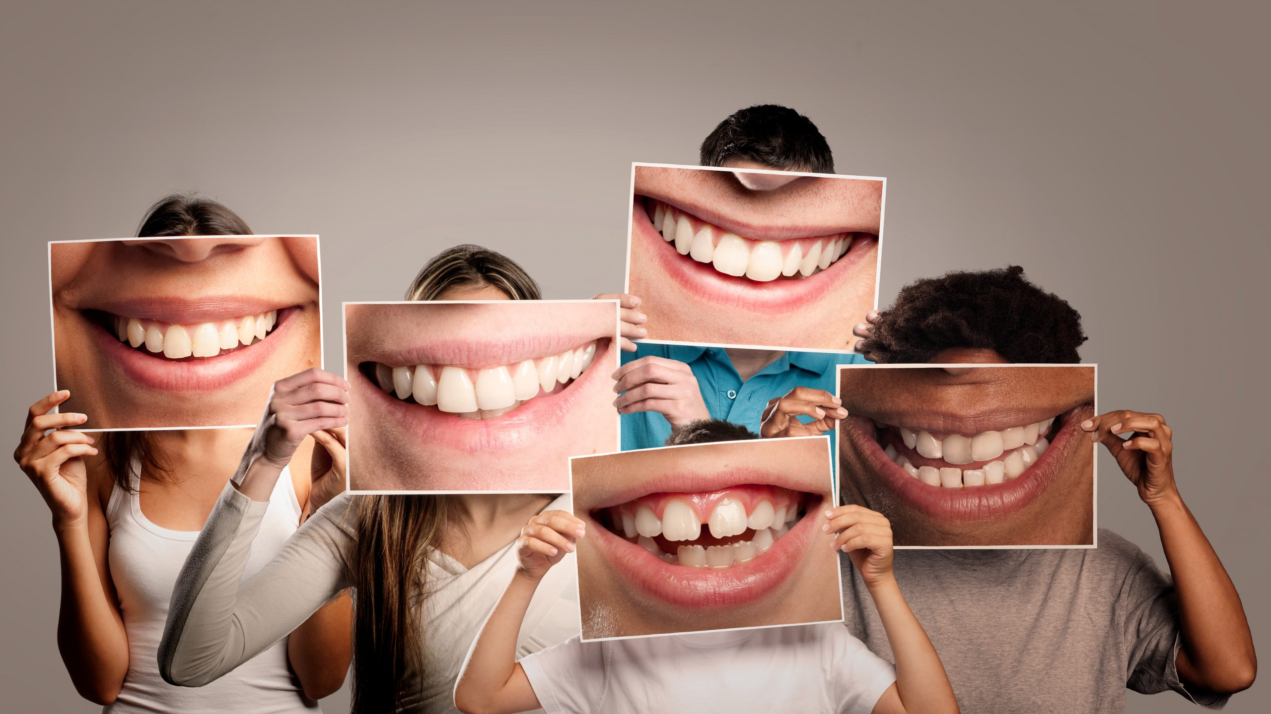 Full Smile Makeover with Veneers - Harley st Smile Clinic